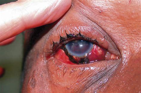 eye injury community eye health journal 187 assessing and managing eye injuries