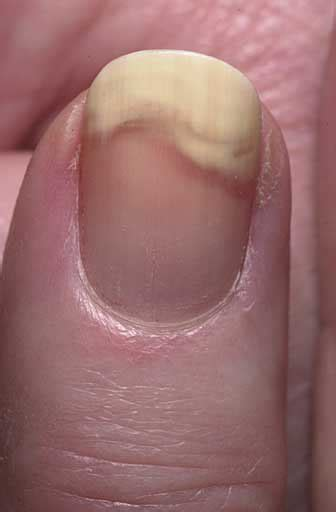 nail separating from nail bed nail bed problems