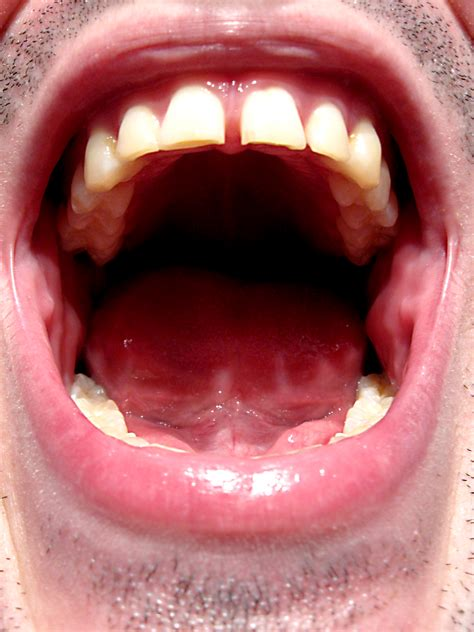 mouth open bad breath brookfield smiles blog