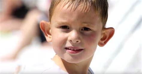 big ears in boys boy bullied for big ears gets plastic surgery
