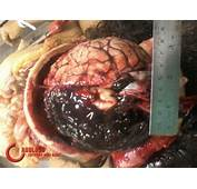Derrame Cerebral Hemorr&225gico Caracter&237sticas Gerais