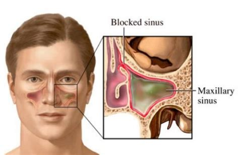 Sinus Resdung what causes white phlegm in cough how to cope med