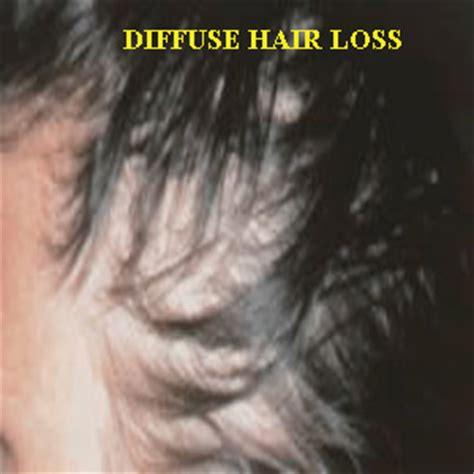 diffuse pattern hair loss diffuse pattern hair loss free patterns