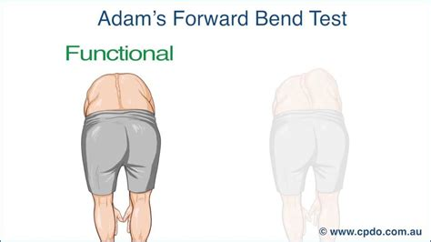 test forwarding adam s forward bend test