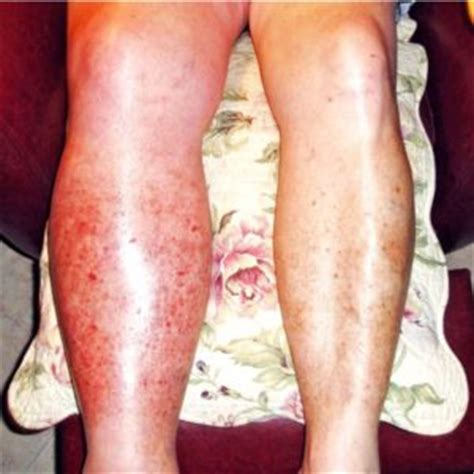 symptoms of blood clot in leg yahoo tags treatment for