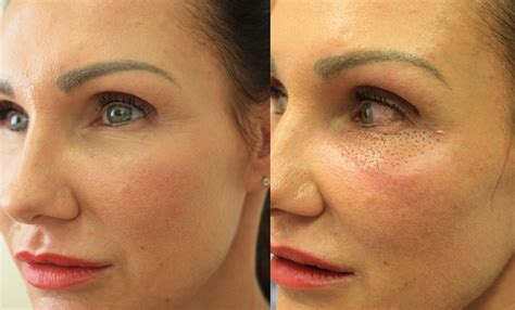 plexr non surgical plasma eyelid eye bag treatment