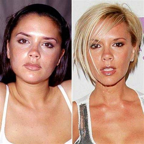 shocking celebrity plastic surgery before and after