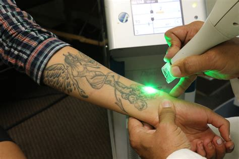 tattoo removal in new york california today starting with the help of
