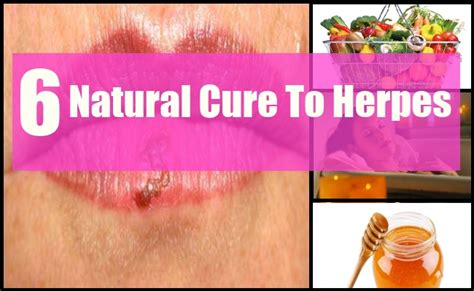 6 cures for herpes how to cure herpes naturally
