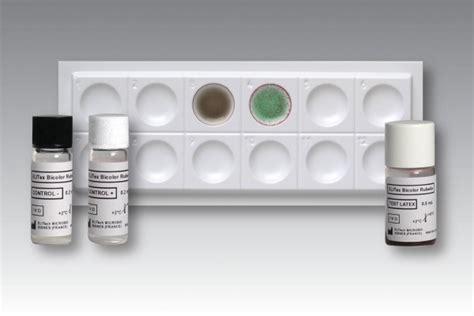 Reagent Larutan Laboratorium Immunology Serology Uk elitex bicolor rubella test for detection of rubella
