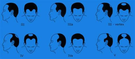 male pattern hair loss reversal 3 weird rules for stopping male pattern baldness nicehair