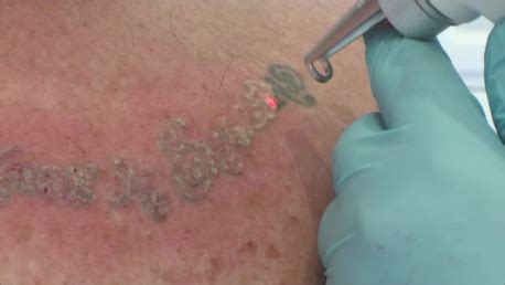 laser tattoo removal training uk machine operational