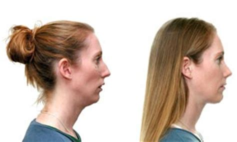 orthognathic surgery age 50 and over image gallery mandibular hypoplasia