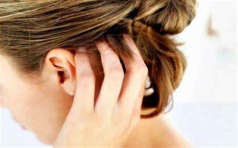 Sho Nr Untuk Rambut Berketombe cara alami menghilangkan kutu pada rambut asuji
