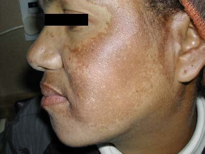 urlaub in skih tte melasma treatment causes pictures symptoms