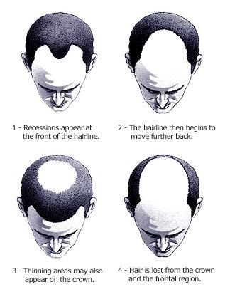 how male pattern baldness works straight no chaser about hair loss and male pattern