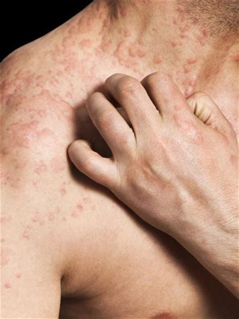 Allergic Reaction To New Mattress by Common Shingles Rash Livestrong