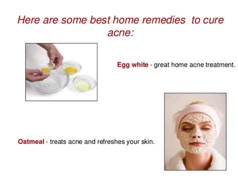 best proven home remedies for acne