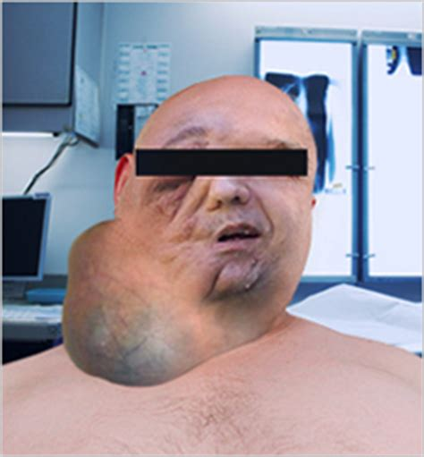 55 yr old mens pics 55 year old man suffocates from massive gmo tumor