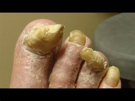 kill athletes foot in shoes all toenail fungus treatment works on athlete s