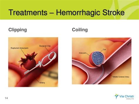 stroke treatment via christi s connection what is stroke