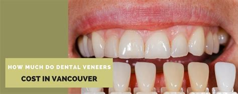 how much do dental veneers cost in vancouver
