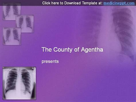 powerpoint templates x ray chest x ray powerpoint template authorstream