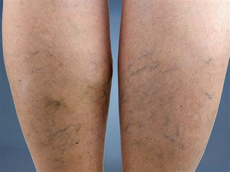 varicose veins treatment symptoms causes pictures varicose veins causes symptoms treatment and prevention