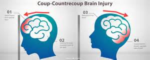 traumatic brain injury tbi treatment and recovery