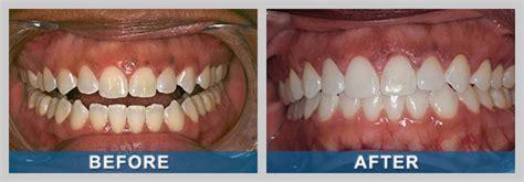 teeth whitening reno whiten teeth spanish springs