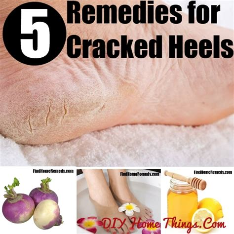 5 effective home remedies for cracked heels diy home things