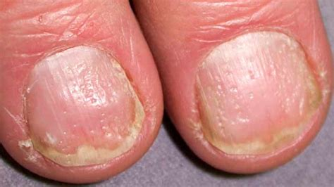 dent in nail bed dents in nails fingernails nail bed thumbnails causes