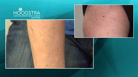 imagenes de manchas oscuras en los brazos lentigos solares manchas de los brazos tratamiento con