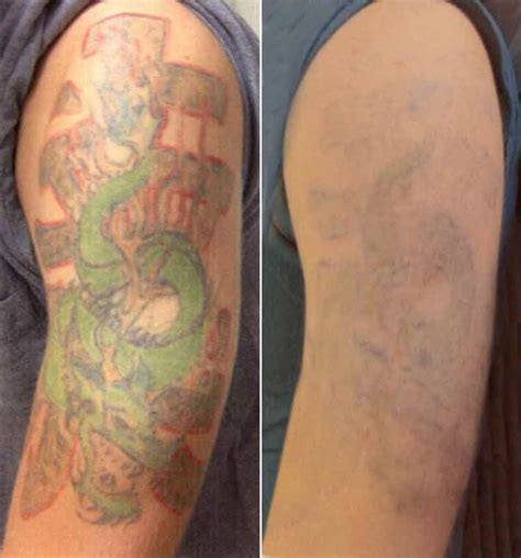 tattoo removal green ink laser tattoo removal contour dermatology