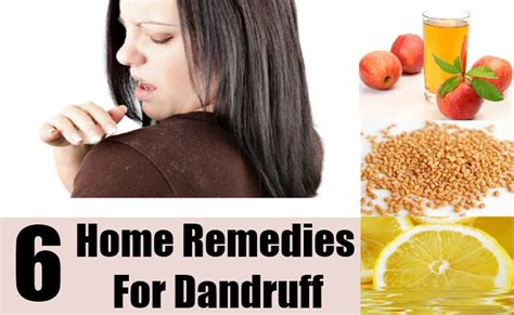 6 home remedies for dandruff diy find home remedies