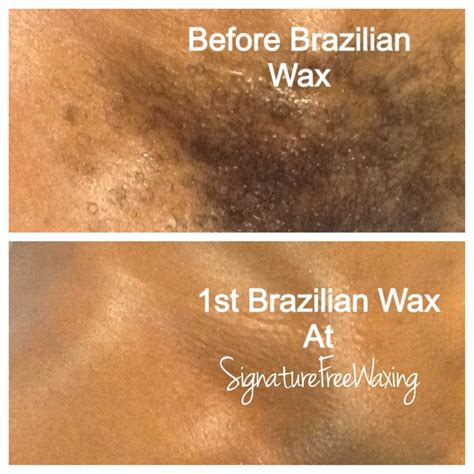 full brazilian wax photos before and after brazilian wax photos before and after hair removal