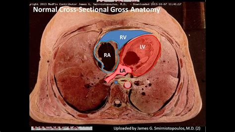 axial section normal chest cadaver axial sections youtube