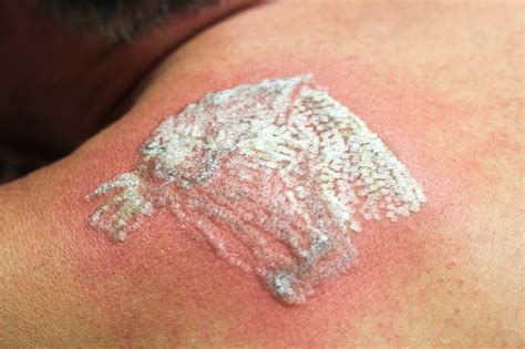 tattoo removal side effects side effects of permanent tattoos on skin plus