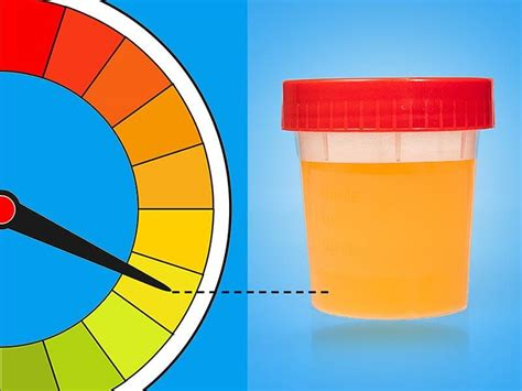 what color is your urine supposed to be yellow urine what are the most common causes of yellow