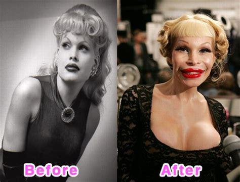 celebrity plastic surgery blog celeb surgery pics celebrity plastic surgery disasters before and after