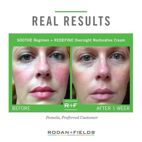 7 Ways To Soothe Skin Irritations by Best 25 Rodan And Fields Soothe Ideas On