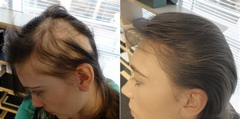 before and after photos alopecia antrogenetic women the hair centre alopecia areata results