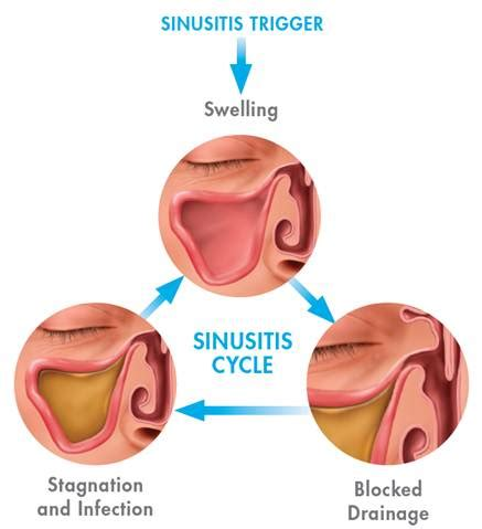 Sinus Care sinusitis causes symptoms and treatments