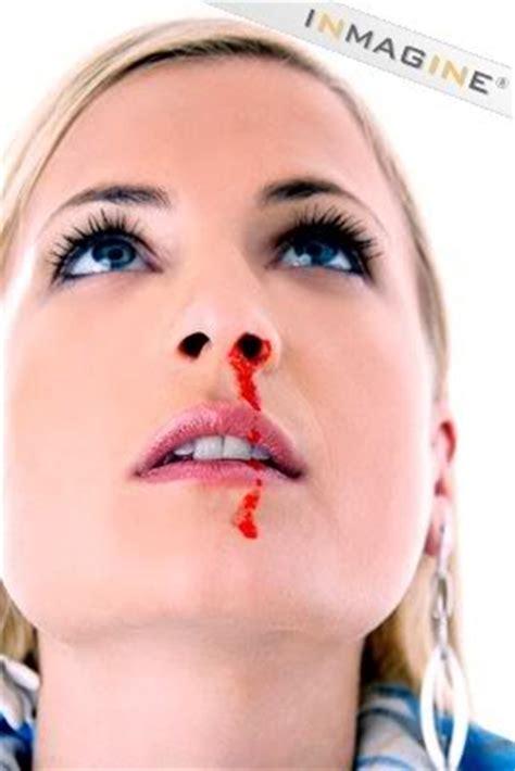 nose bleed image gallery nosebleed