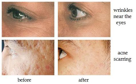 diode laser treatment for acne smoothbeam laser basuk dermatology