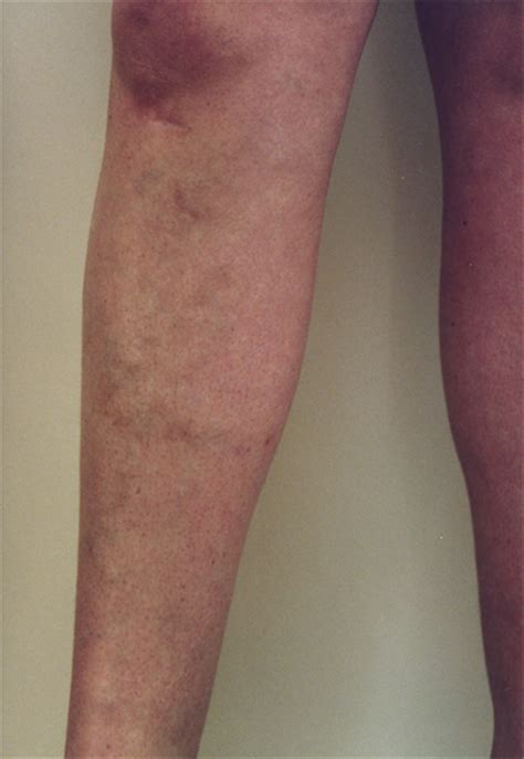 spider veins on the legs treatments varicose vein treament gallery of before and after treating