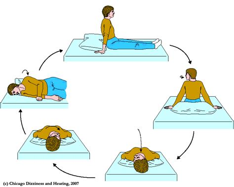 epley crp maneuver for bppv