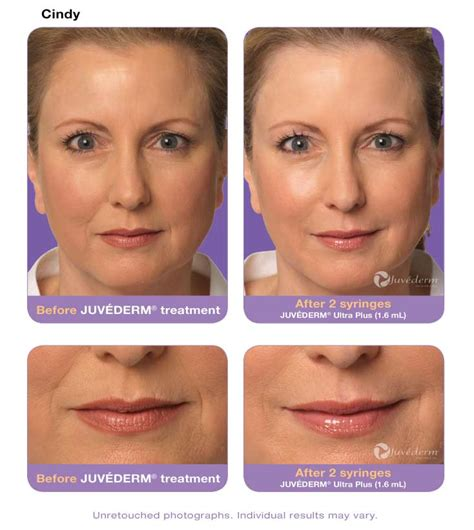 juvederm hair styles juvederm vertical lip lines before after hairsstyles co