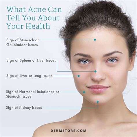 healthy fats and acne reducing on get on