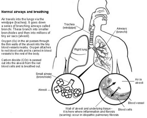 anti acid treatment and disease progression in idiopathic stages of pulmonary fibrosis go search for